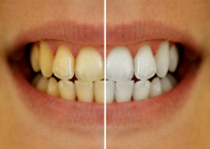 Teeth whitening before and after treatment, Grantham.