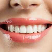 Woman with white teeth after teeth whitening treatment in Grantham